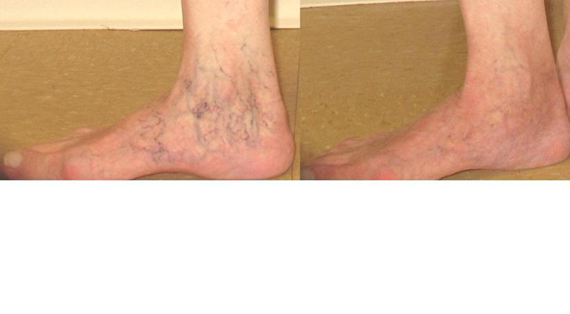Ankle Veins